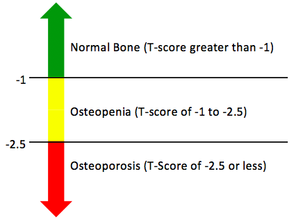 18++ Can you have osteopenia and osteoporosis at the same time viral