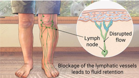 Strong and Stable | Lymphoedema & Manual Lymphatic Drainage
